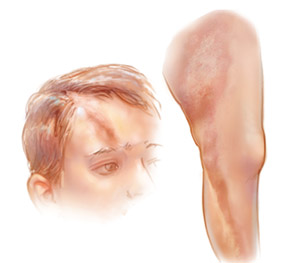 Препараты которые уменьшают фиброз склеродермии на шаг ближе