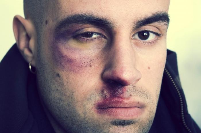 blåmärken under ögonen
