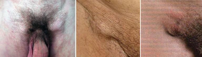 limfangită pe penis